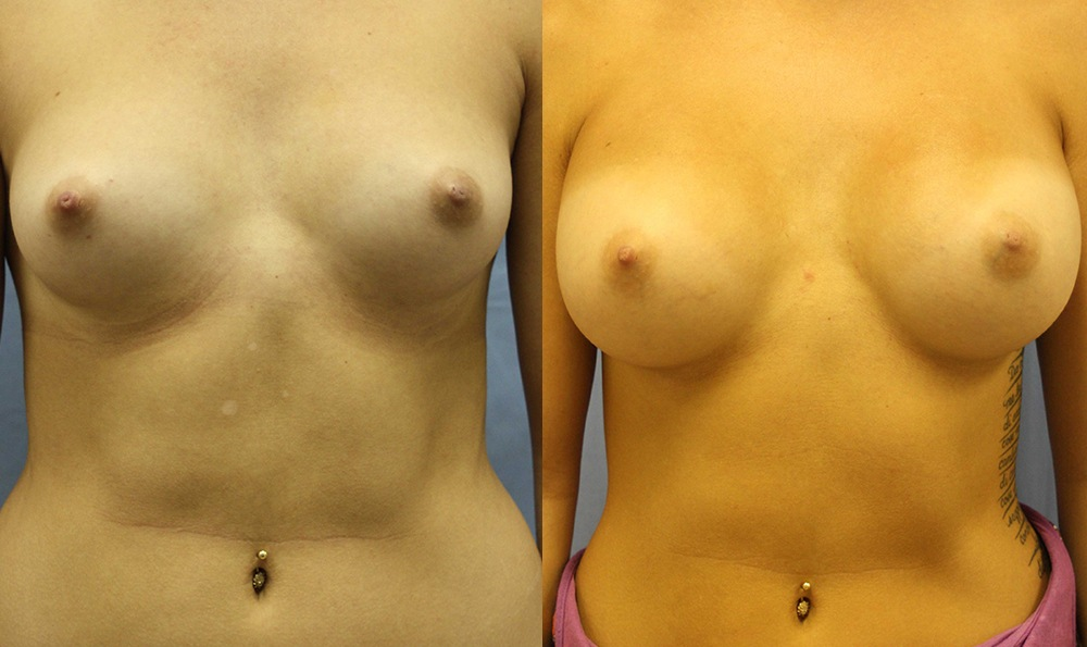 Patient 13a Breast Augmentation Before and After