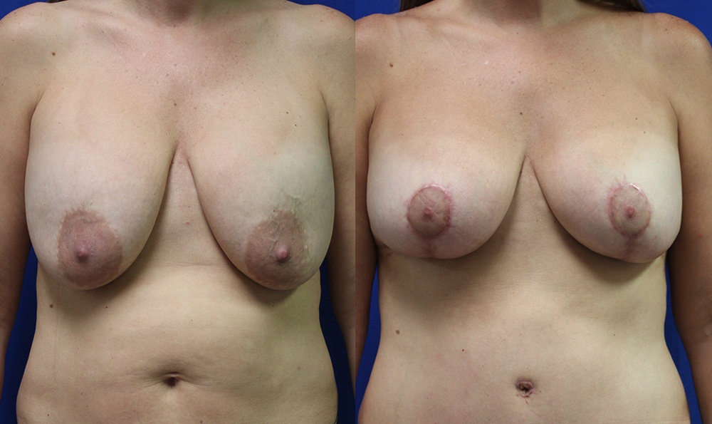 Patient 19a Breast Augmentation Before and After