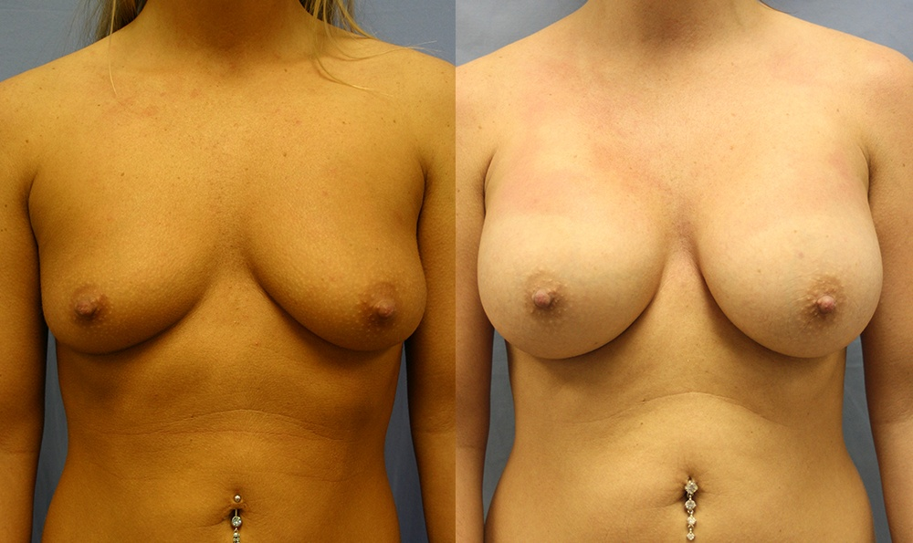 Patient 24a Breast Augmentation Before and After