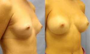 Patient 13b Breast Augmentation Before and After