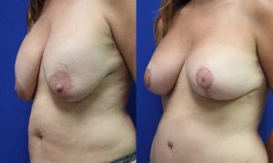 Patient 19c Breast Augmentation Before and After