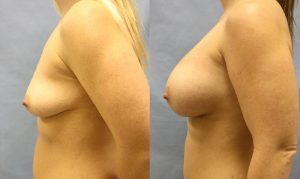 Patient 24b Breast Augmentation Before and After
