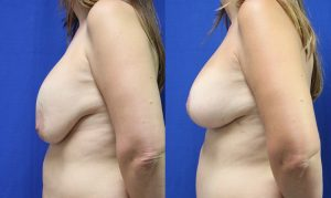 Patient 19b Breast Augmentation Before and After