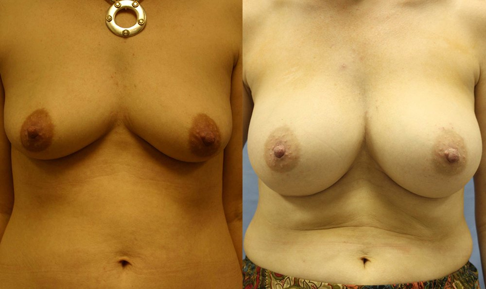Patient 25a Breast Augmentation Before and After
