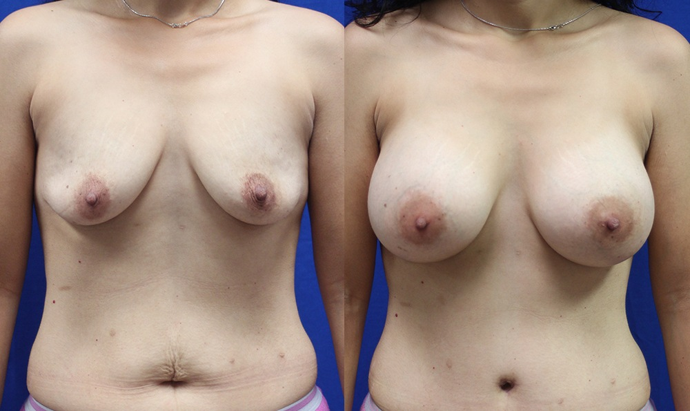 Patient 20a Breast Augmentation Before and After