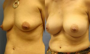 Patient 25b Breast Augmentation Before and After