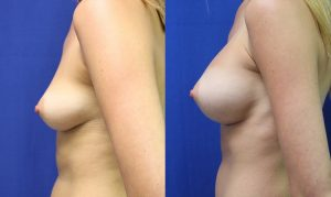 Patient 14b Breast Augmentation Before and After