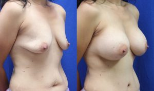 Patient 20b Breast Augmentation Before and After