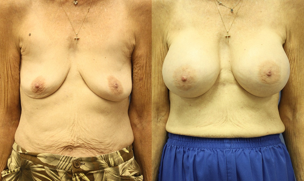 Patient 15a Breast Augmentation Before and After