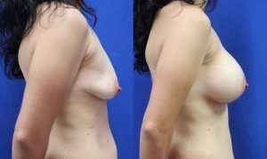 Patient 20c Breast Augmentation Before and After