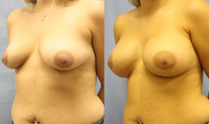 Patient 26b Breast Augmentation Before and After