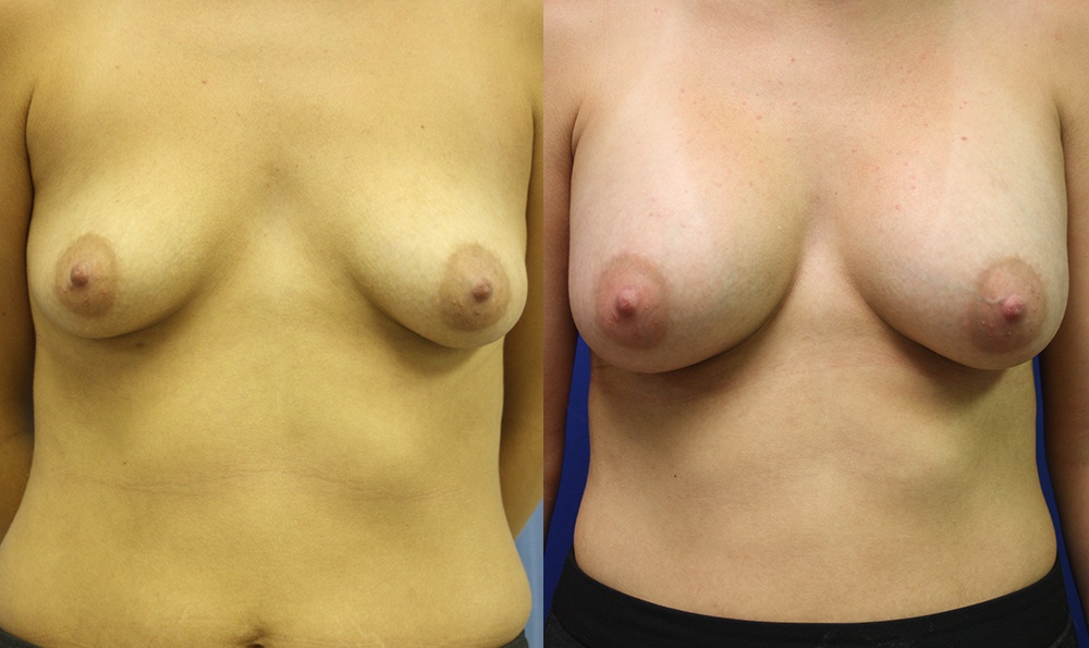 Patient 21a Breast Augmentation Before and After