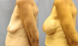 Patient 15c Breast Augmentation Before and After