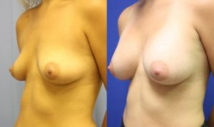 Patient 21b Breast Augmentation Before and After