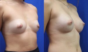 Patient 27b Breast Augmentation Before and After