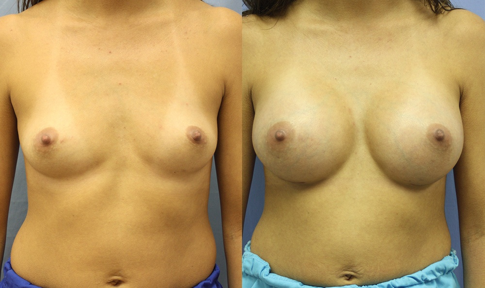 Patient 16a Breast Augmentation Before and After