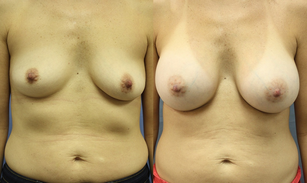 Patient 22a Breast Augmentation Before and After