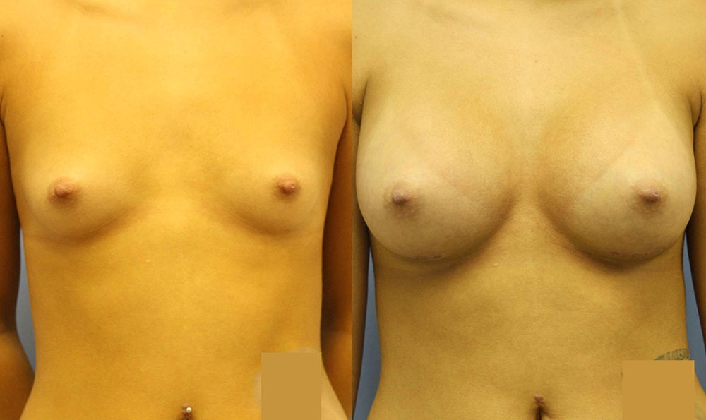 Patient 28a Breast Augmentation Before and After