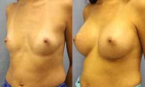 Patient 16b Breast Augmentation Before and After