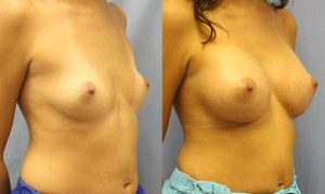 Patient 16c Breast Augmentation Before and After
