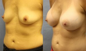 Patient 22b Breast Augmentation Before and After