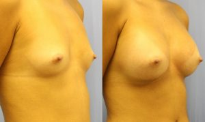 Patient 28b Breast Augmentation Before and After