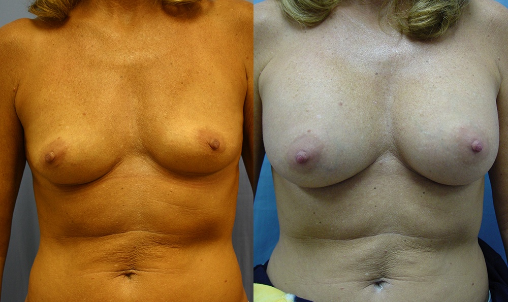 Patient 23a Breast Augmentation Before and After