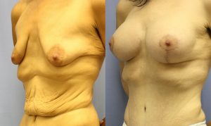 Patient 12b Breast Augmentation Before and After