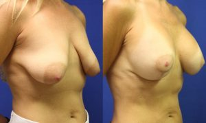 Patient 17b Breast Augmentation Before and After