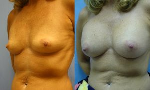 Patient 23b Breast Augmentation Before and After