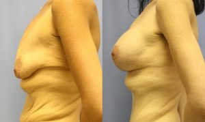Patient 12c Breast Augmentation Before and After