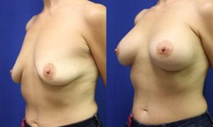 Patient 29b Breast Augmentation Before and After