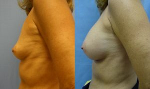 Patient 23c Breast Augmentation Before and After