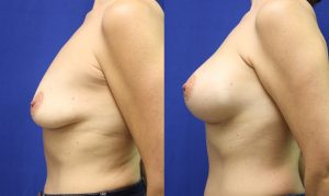 Patient 29c Breast Augmentation Before and After