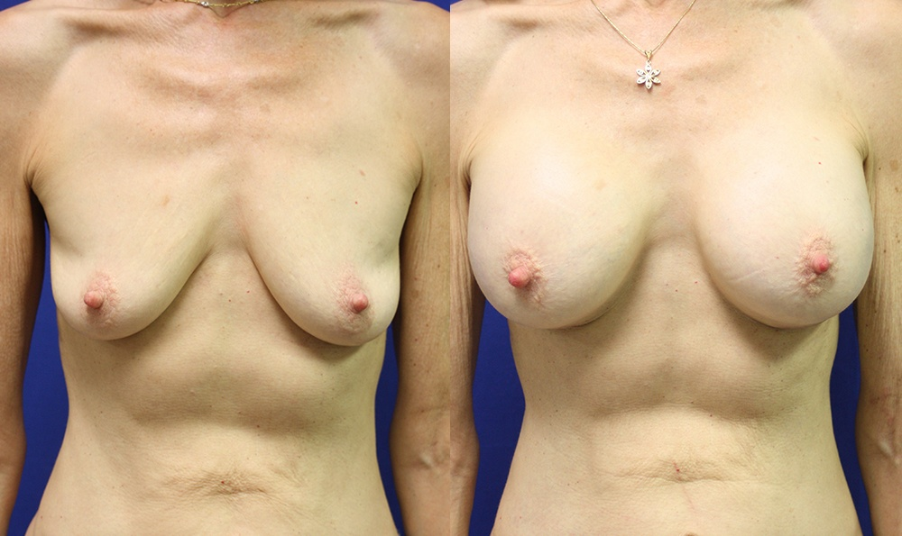 Patient 18a Breast Augmentation Before and After