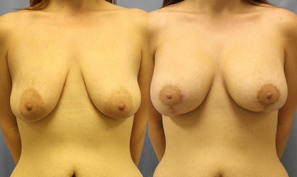 Patient 30a Breast Augmentation Before and After
