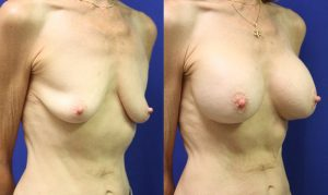 Patient 18b Breast Augmentation Before and After
