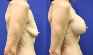 Patient 18c Breast Augmentation Before and After