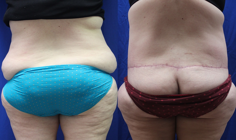 Patient 5 Body Lift Before and After