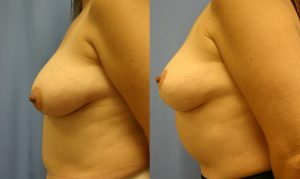 Patient 6c Breast Lift Before and After