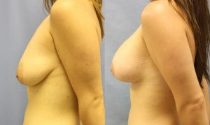 Patient 30c Breast Augmentation Before and After