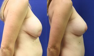 Patient 31b Breast Augmentation Before and After