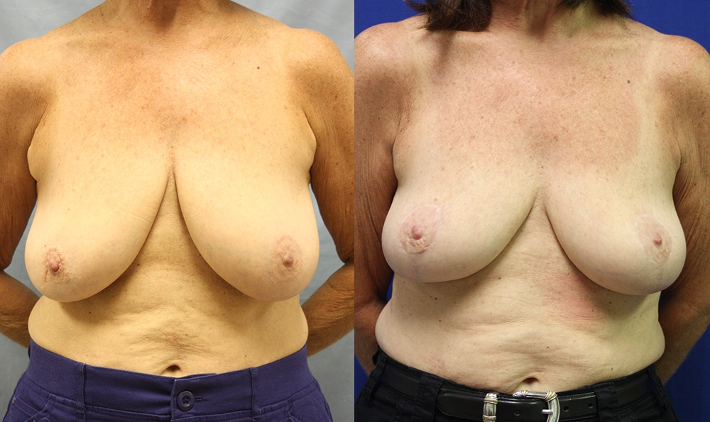Patient 10a Breast Lift Before and After