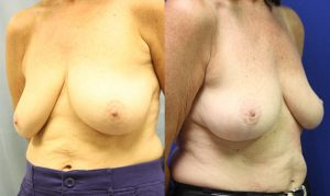 Patient 10b Breast Lift Before and After