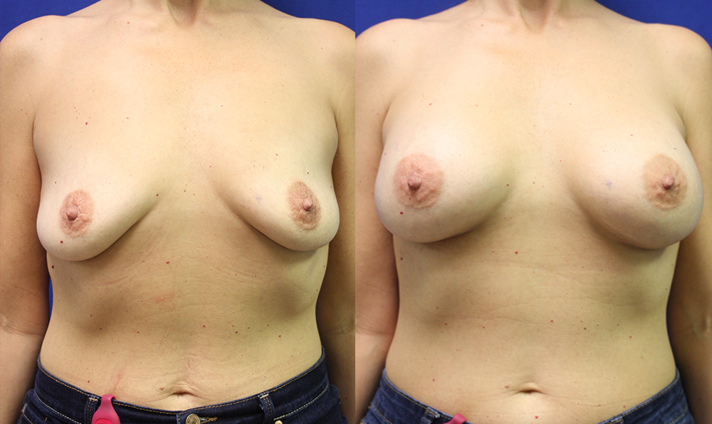 Patient 11a Breast Augmentation Before and After