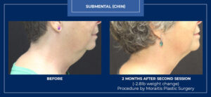 moraitis-palm-harbor-coolsculpting-patient-1-1-2