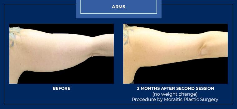 moraitis-palm-harbor-coolsculpting-patient-17-1